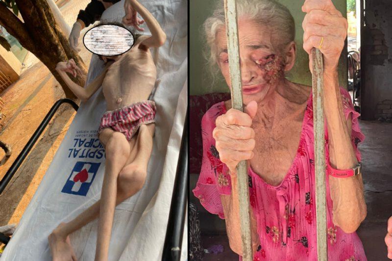 Em cidade do MT, menor de 17 anos com microcefalia e idosa de 76 com ferida por câncer são resgatadas thumbnail